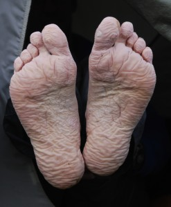 Trench_foot